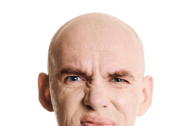 斑秃长出来的是白头发