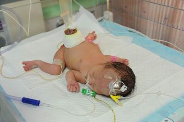 大年初二 婴儿被遗弃在医院门口 腹腔器官裸露在外