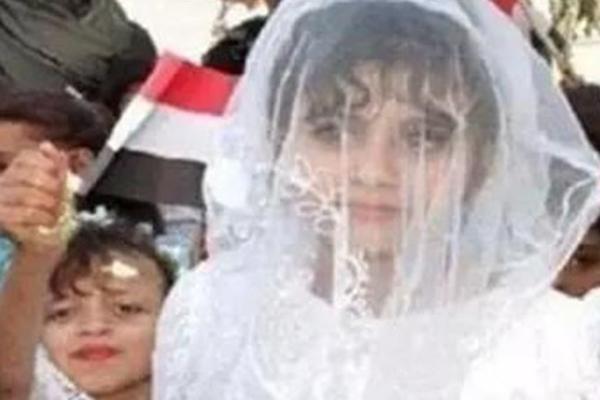 也门八岁新娘初夜子宫大出血惨死 性虐女童引关注