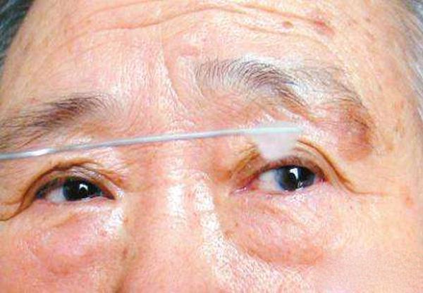 眼内有白色分泌物怎么回事