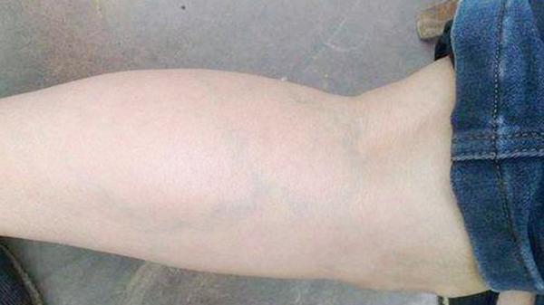 小腿酸痛是什么原因 这些你都知道吗