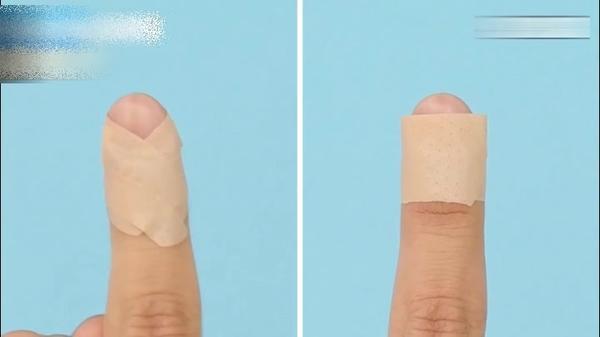手指出血怎么快速止血,手指出血怎么止血,手指出血了怎么办