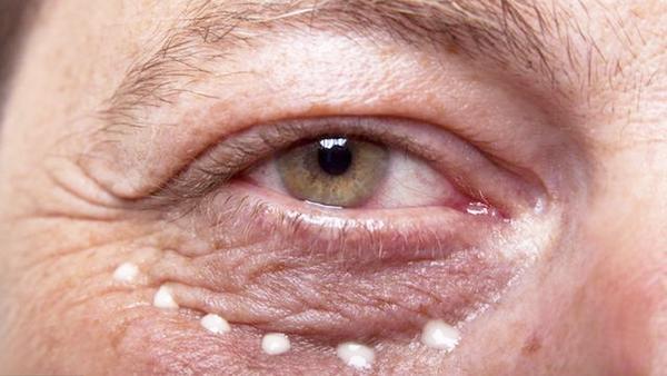 眼睛酸涩是怎么回事,眼睛酸胀痛是怎么回事,眼睛酸痛是怎么回事