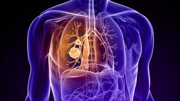 肺部小结节是什么病, 肺部小结节的症状,什么是肺部小结节