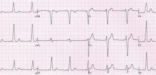 心室预激是什么意思呢?