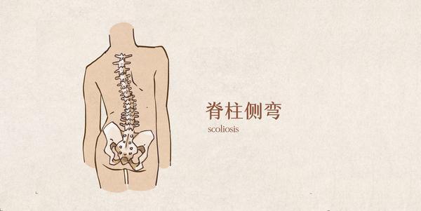 先天性脊柱侧弯能治好吗