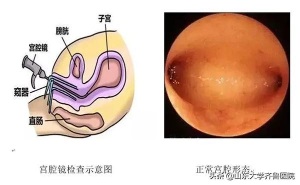 宫腔镜插管是什么意思