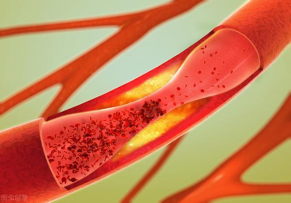溶解血栓最好的药是什么药