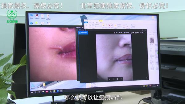 嘴唇上长泡后留疤了 怎么做才能消除疤痕?