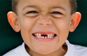 儿童掉牙的顺序图片