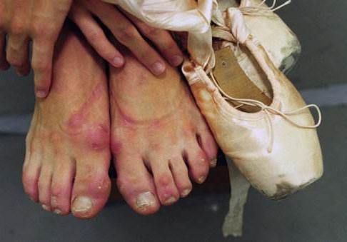 这是芭蕾舞女神的脚背?网友:芭蕾真是残酷的代言!
