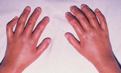 手指皮肤变硬脱皮图片