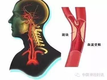 查出了高血脂,离动脉粥样硬化还有多远?(附真实血管图)