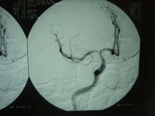 大脑血管解剖图