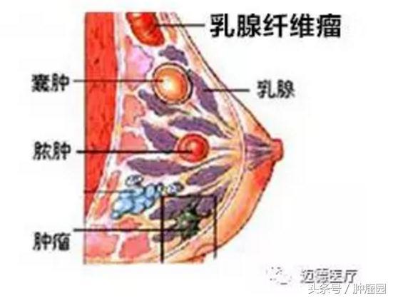 乳腺纖維瘤切除后疤痕
