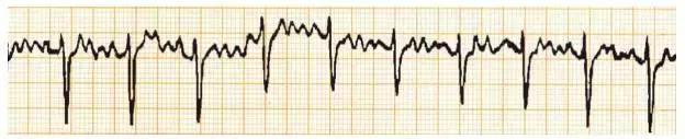 窦性心心动过速心电图