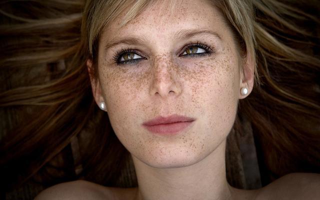 如何分辨自己脸上的斑是什么类型的斑呢