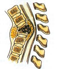 腰椎结核会活多久