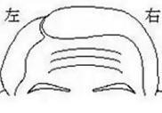 有天柱紋的真人圖片