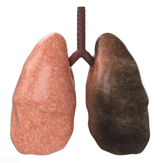 吸烟后的肺