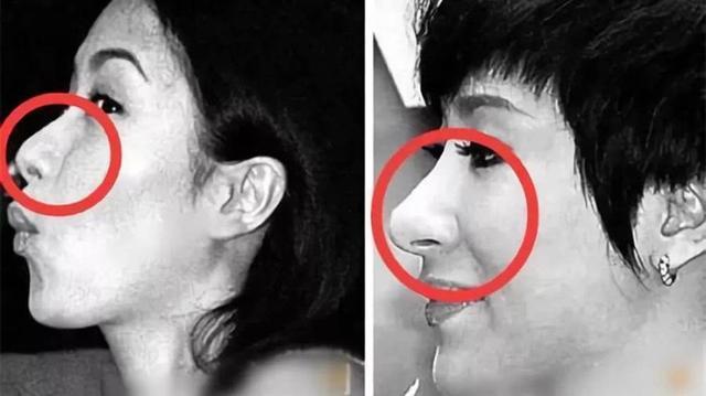 整的最自然的鼻子照片