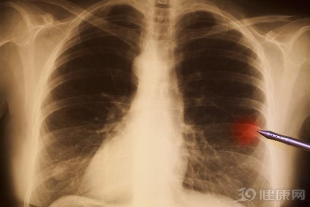 抽烟者的肺