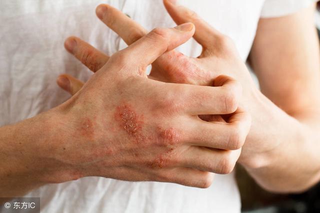 手部过敏湿疹图片_有来医生