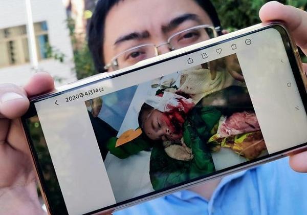 湖南一女子因举报乱倒垃圾,一家人被邻居砍伤,儿子脸被一分为二