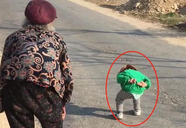 小孩严重驼背恐怖图片