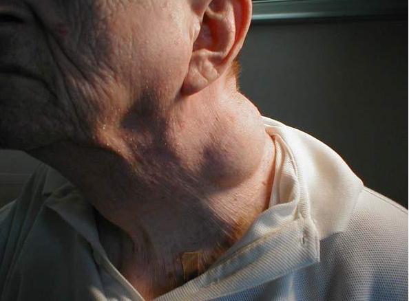 粘液性脂肪肉瘤图片