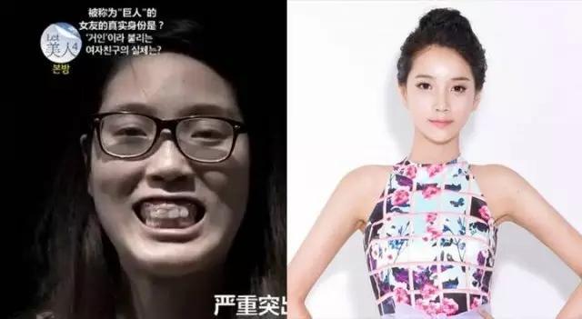 韩国整容节目let美人口臭