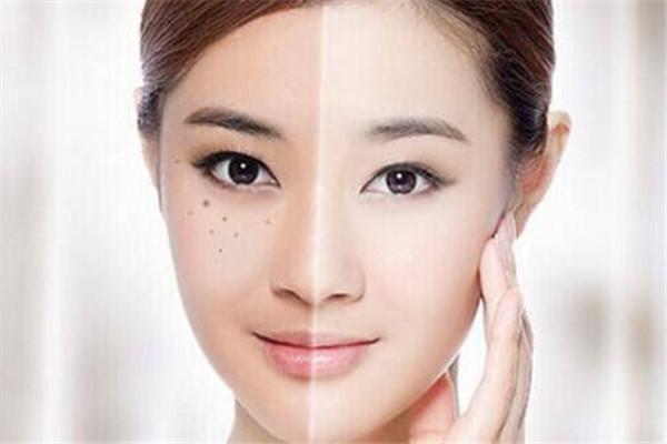 脸上长斑下不去,乱用护肤品越长越多,看看这几个祛斑小妙招