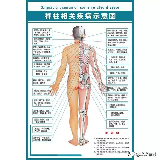 ]颈椎、胸椎、腰椎、骶椎不适与疾病对照表_症状库_飞华健康网