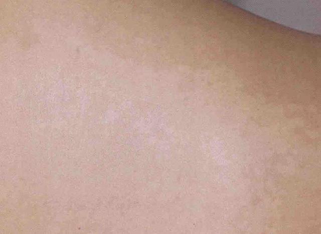 皮肤白斑的症状图有哪些_39健康经验