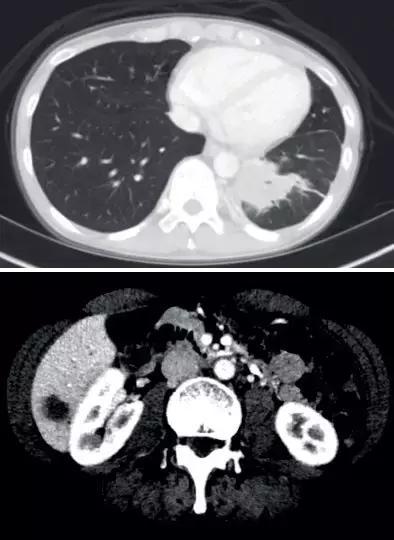 史上最全!肺癌靶点全面解读及对应靶向药物方案盘点!(2018)
