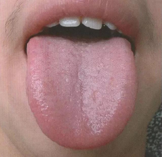 正常喉咙小舌头图片