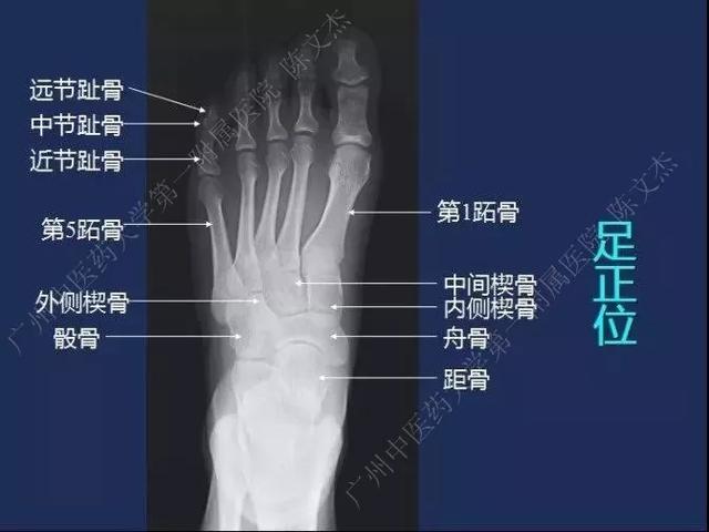 下肢静脉解剖图
