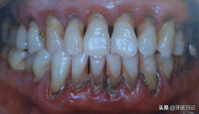 牙龈肉芽肿图片