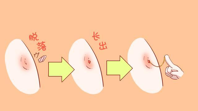 婴儿肚脐长肉芽的照片是什么样的?