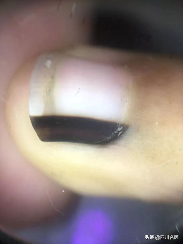 53岁女子指甲长出黑线,一查竟是恶性肿瘤!这3种预兆... _腾讯网