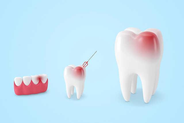 牙医都说好的电动牙刷,我用了1年后却决定放弃 生活与健康 第5张