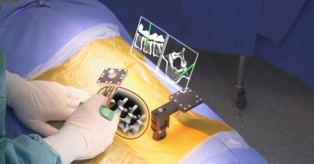 刚刚,美国批准外科医生可以用AR技术进行手术 |硬核科技