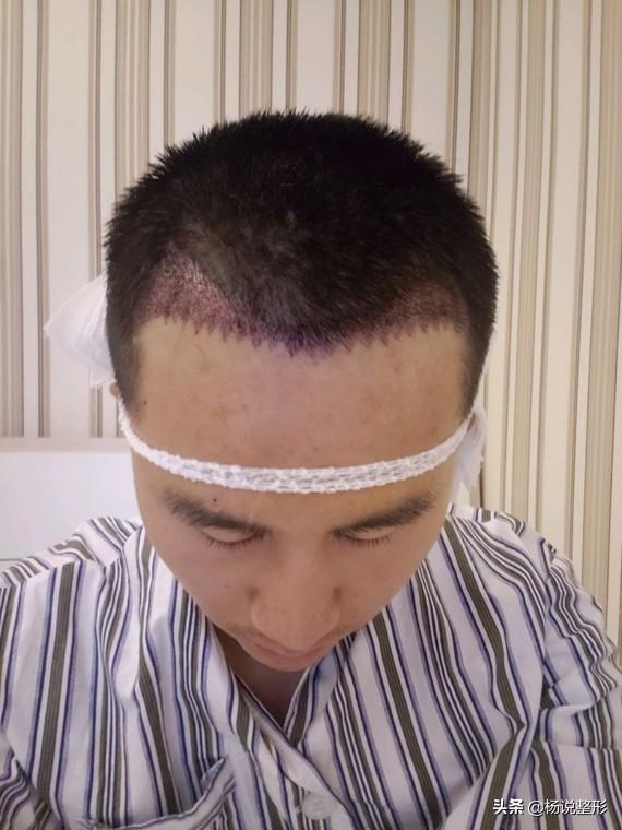 植发的效果怎么样?