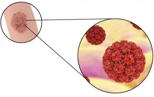九价宫颈癌疫苗短缺?选二价,四价哪个性价比更高?