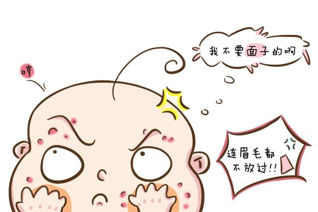 一文教你分辨宝宝常见疹子:湿疹和痱子_网易新闻