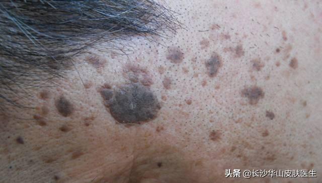 这是华山医院皮肤科ICU的头号重病,您知道吗?