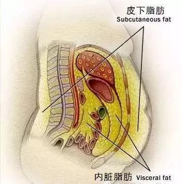 腹部皮下脂肪颗粒图片