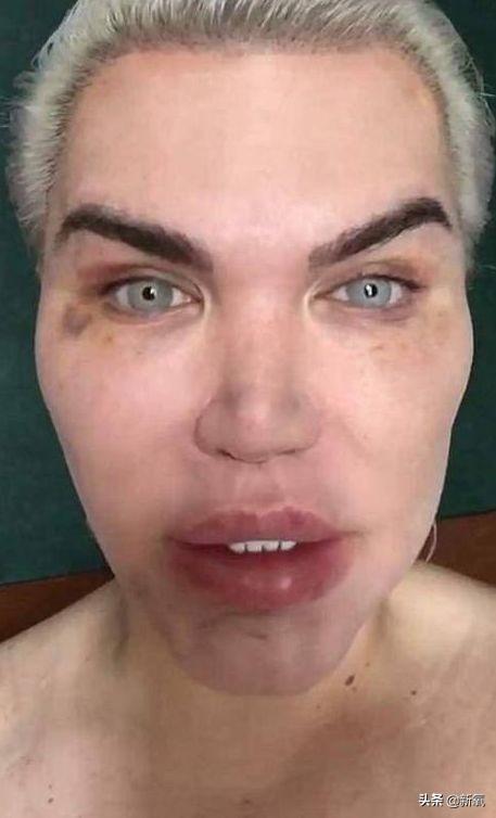 在自己脸上动了70次刀子的巴西整形狂魔,又要变性成芭比娃娃了?