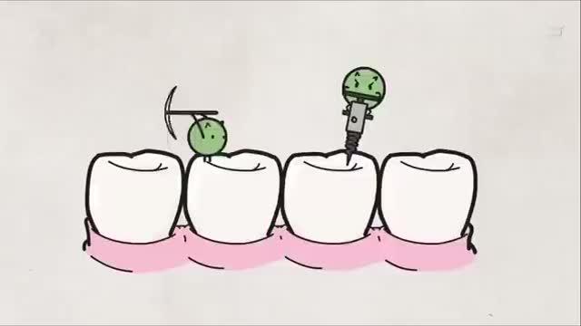 经常不刷牙身体竟变成这样
