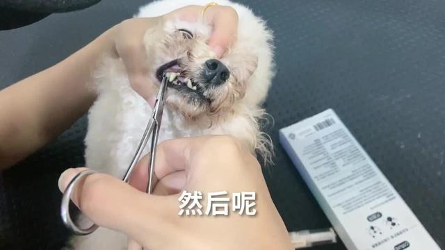 严重的牙结石图片